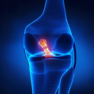 How Can You Know if You Tore Your ACL?